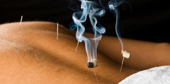 A Acupunctura e a Moxabustão como tratamentos saudáveis